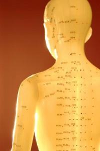acupuncture san antonio tx